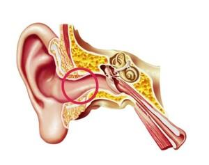 Ursachen des Hörverlustes: Ursachen im äußeren Ohr.