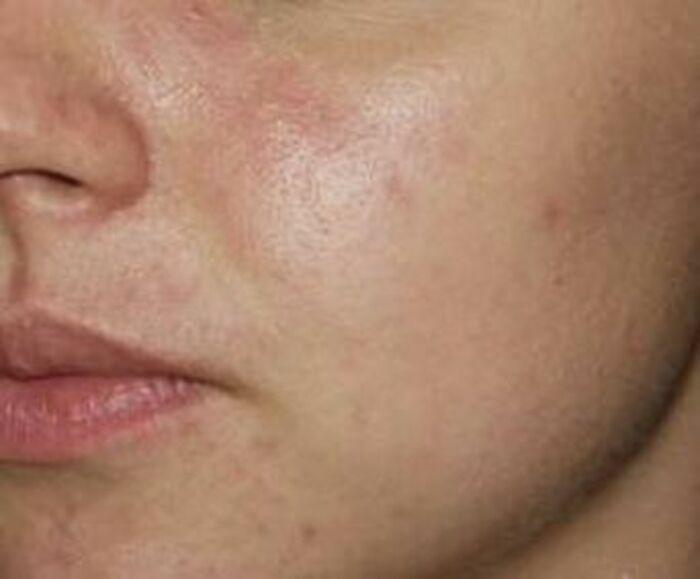 Nachher – Hautbildverbesserung bei Akne durch BHA-Peeling