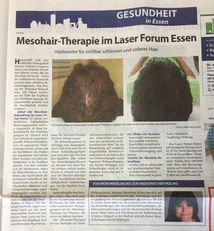 Mesohair Zeitungsbeitrag
